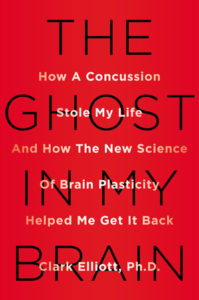 Concussion Story